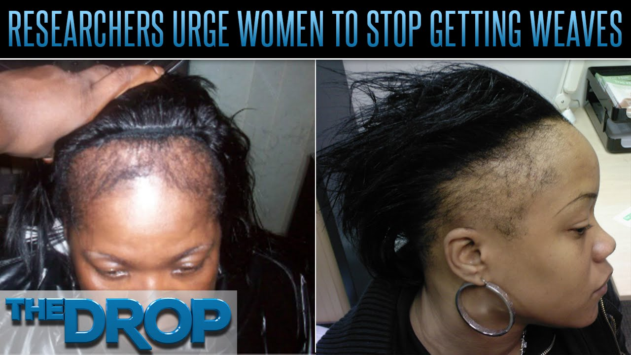 Black women going bald the drop presented by add youtube pmusecretfo Images