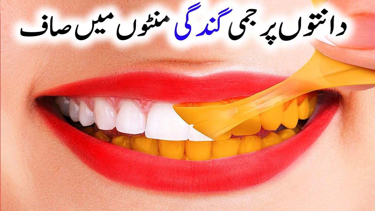 Beauty Secret To Whiten Teeth in 2 Minutes