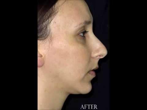 Miami Beach and Aventura Oral Surgery - Jaw Surgery Testimonial 305-538-4556