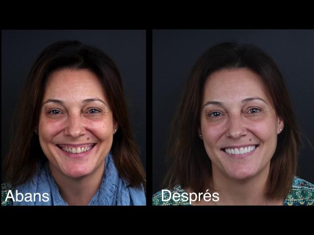 Estètica dental i carilles dentals de compòsit - Clínica Padrós