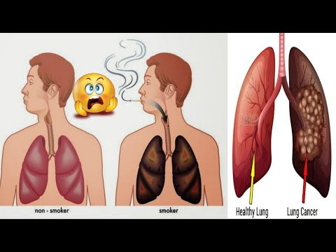 10-common-causes-of-lung-cancer-you-must-not-ignore-today-|-lung-cancer-catalysts