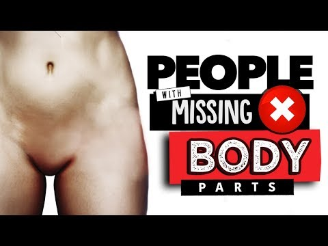 10 Extraordinary People with Missing Body Parts