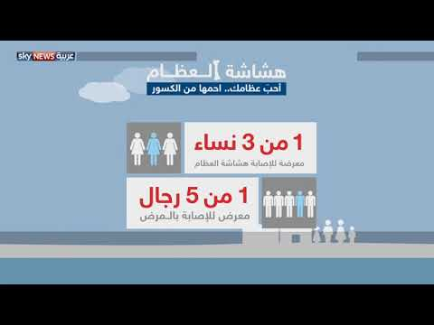 هشاشة العظام.. تهدد الجميع  - 03:21-2017 / 10 / 20