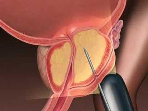 Prostatitis botok