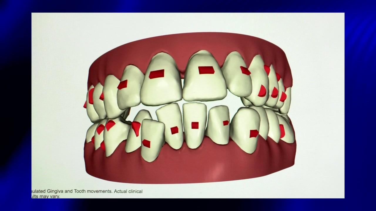 Jersey Dental Group Burlington   Burlington Dentist Office