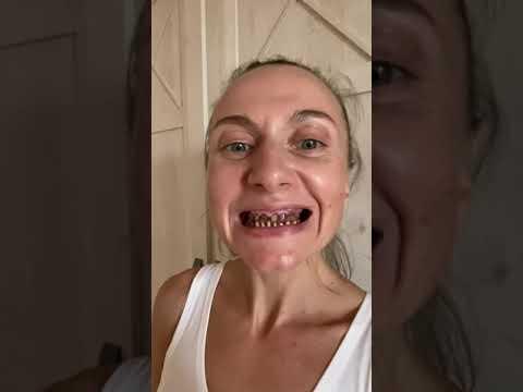 Моя страшная история зубов/ коронки, виниры.