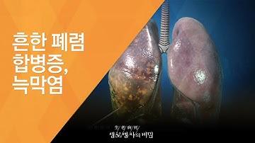 흔한 폐렴 합병증, 늑막염 - (2015.11.11_561회 방송)_노인성 폐렴