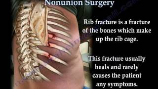 Rib Fracture Nonunion Surgery - Everything You Need To Know - Dr. Nabil Ebraheim