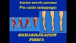 De tratamiento de tobillo neuropatía