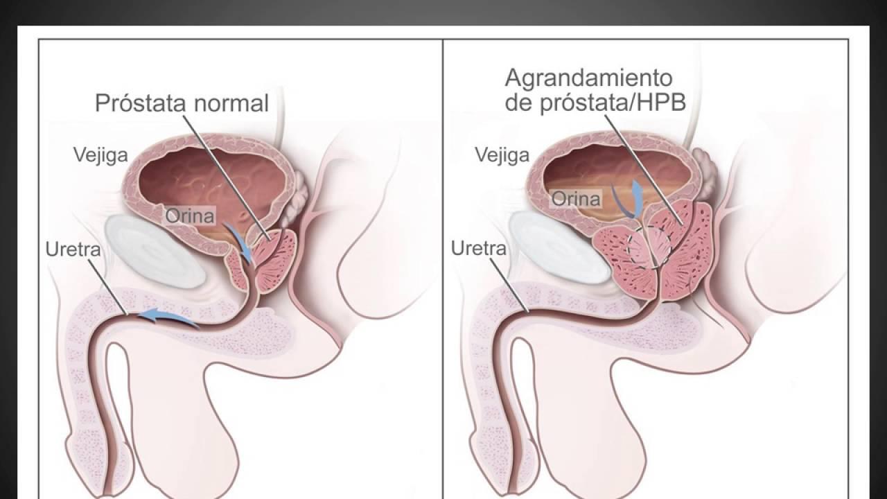 Único Sistema Reproductivo Masculino Fotos Composición - Anatomía de ...