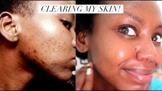 CLEARING MY SKIN - I tried the 10 Step Korean Skin Care Routine || Patricia Kihoro