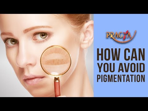 Pigmentation | How Can You Avoid Pigmentation & It's Effects With Dr. Payal Sinha