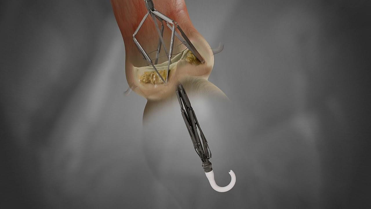 Pi-Cardia Leaflex Procedure