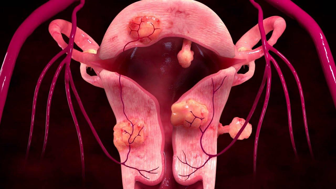 Uterine Fibroid Embolization: An alternative to hysterectomy |Uterine Fibroids