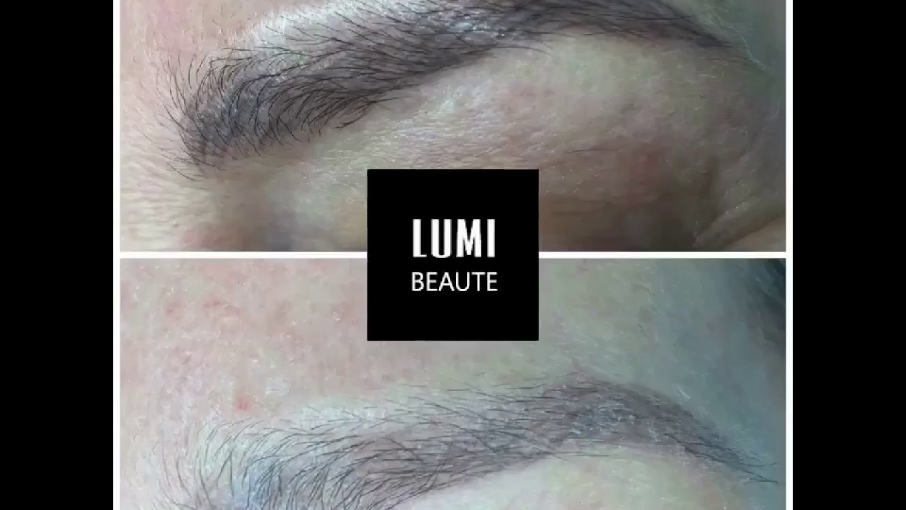 Tattoo removal (laser and scar free) for eyebrow microblading