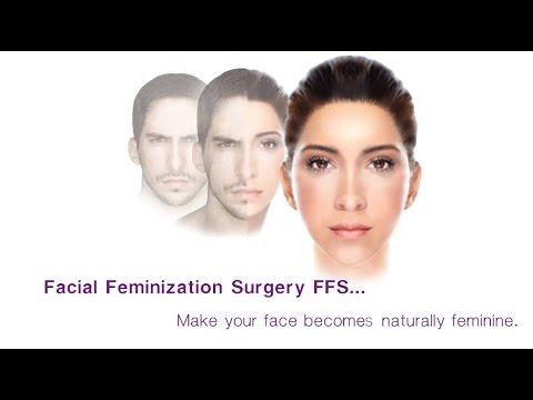 Cirugia femenizacion facial