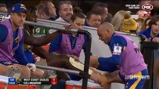 Nic Nat's Injury Curse | 9 News Perth