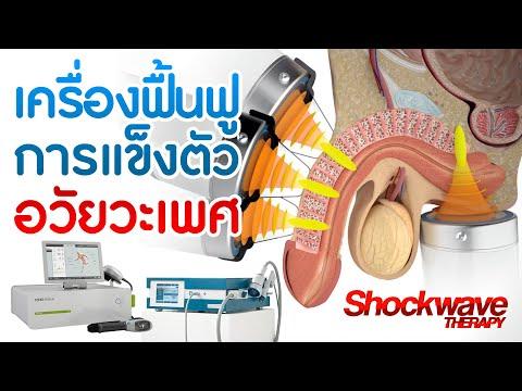 เครื่องฟื้นฟูการแข็งตัวอวัยวะเพศชาย Shockwave Therapy