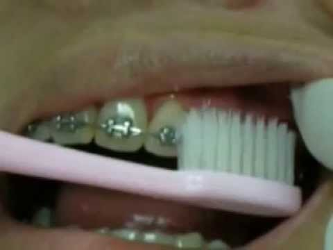 แนะนำวิธีการทำความสะอาดช่องปากในผู้ป่วยจัดฟัน