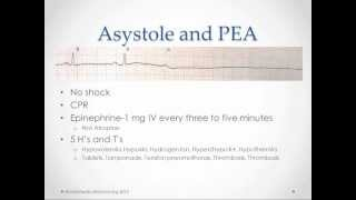Arrhythmia Management - USMLE Step 2 Review
