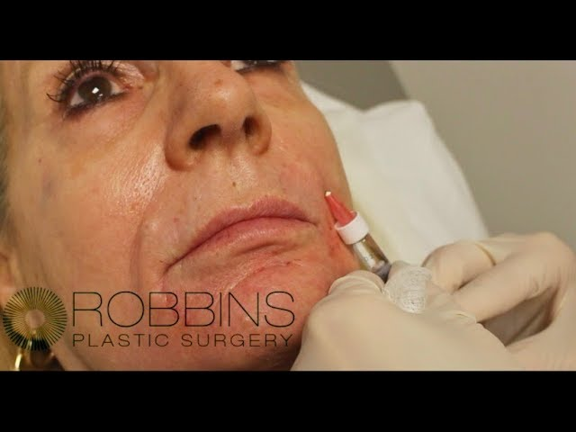 RESTYLANE FILLER- Top Rated Nashville Plastic Surgeon - Robbins Plastic Surgery