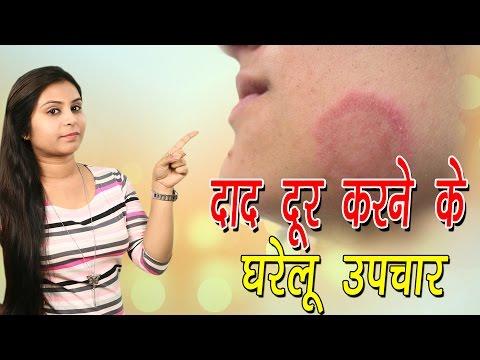 दाद दूर करने के घरेलू उपचार Home Remedies For Ringworm | Daad Ka Ilaj In Hindi - Vianet Health