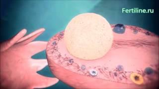 Клиника 'Ферти Лайн' Лечение бесплодия  Кисты яичников(, 2016-01-12T09:05:39.000Z)