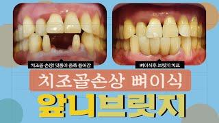 아래앞니 치주염 잇몸뼈 손실 뼈이식후 치아 브릿지 치료
