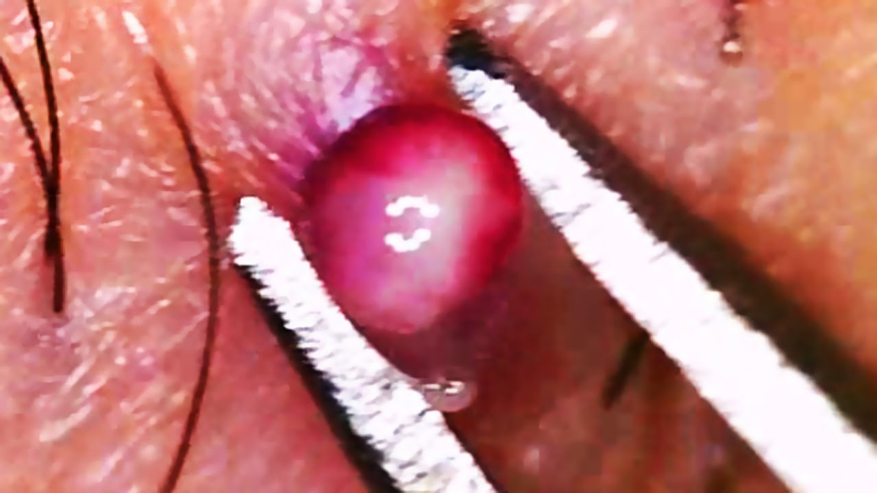 World S Best Ingrown Hair 2016 П��😤😂👍 Doovi