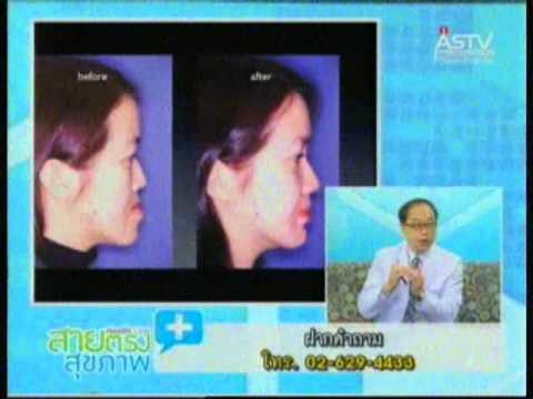 20130310 สายตรงสุขภาพ ช่วงที่2 ศัลยกรรมขากรรไกรเพื่อการแก้ไขรูปหน้าเเละการสบฟัน