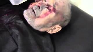 أصابة أحد المسنين بشظاية القذاف درعا البلد