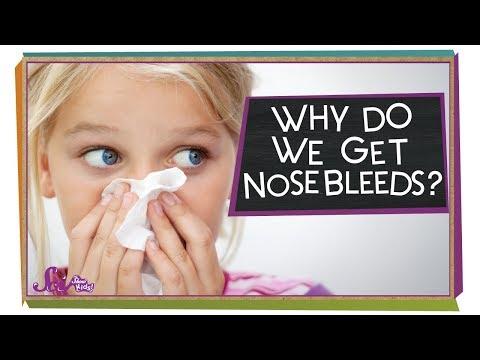 Why Do We Get Nosebleeds?