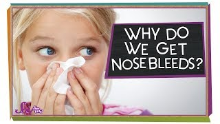 Why Do We Get Nosebleeds?