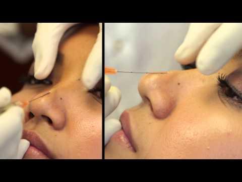 Dr. Kanodia - Nose Filler