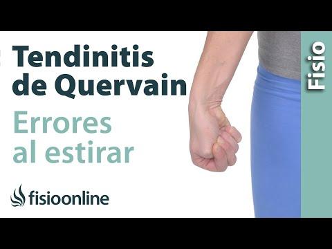 Cómo NO estirar en caso de tendinitis de De Quervain o de muñeca
