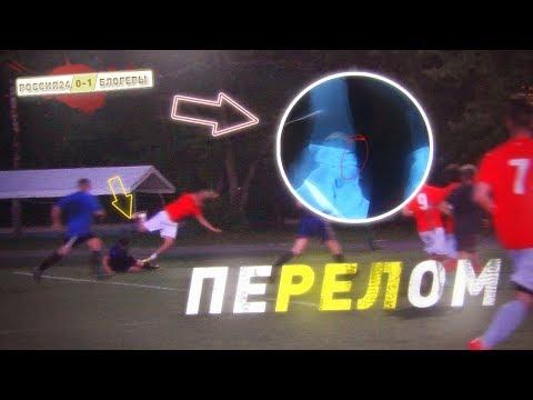 Герман сломал ногу в первом матче. БЛОГЕРЫ VS Россия24 (серия #4 ПЕРВАЯ ИГРА)