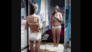 Anorexia...A Mental Disaster