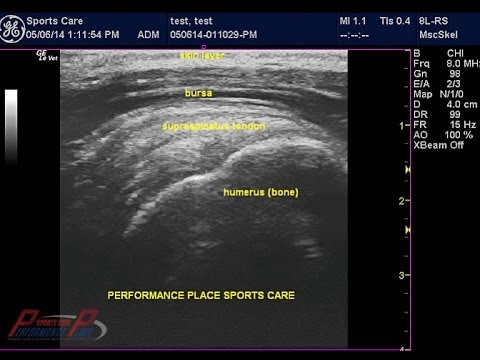 How to read MSK Ultrasound of the Shoulder