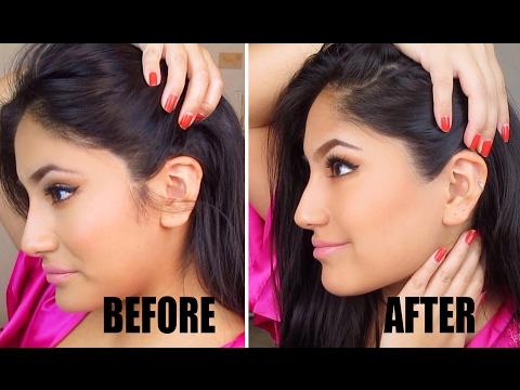 (UPDATED) Getting Rid of Female Sideburns