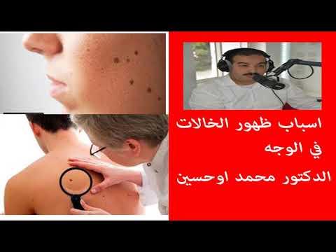 اسباب ظهور الخالات في الوجه الدكتور محمد اوحسين thumbnail