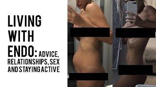 Everything Endometriosis: Advice, IVF, Sex Life + more!