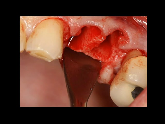 Extraction Flap Bone Graft Membrane Placement Suturing Youtube