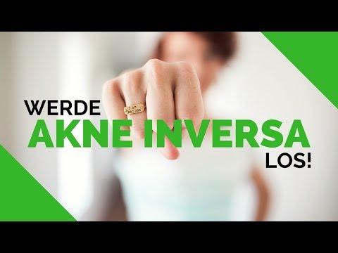 AKNE INVERSA /