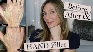 Hand Filler for Younger Looking Hands ~ My Experience Getting Radiesse