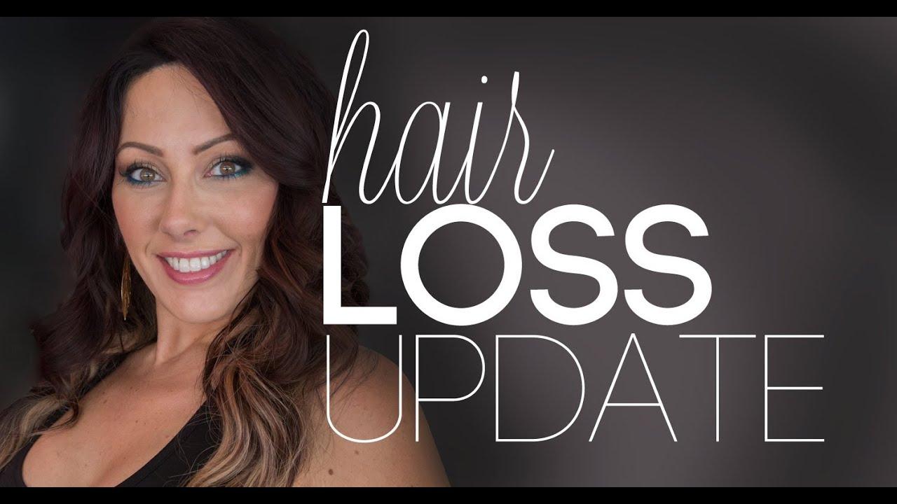 Update: My Hair Loss | Makeup Geek