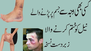 Home Remedies for Bruises on Face|| Bruise Treatment Cream How to Get rid of Bruises|