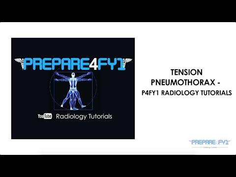 Tension Pneumothorax - P4FY1 Radiology Tutorials