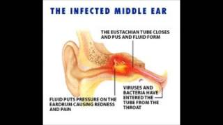 Conductive Hearing Loss Example