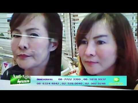 Anti Aging by หมอมาศ@Beauty TV 2015 10 14 บำรุงแขนลดเม็ดสี,fillerจมูก,ร้อยไหมและแก้จมูก 4/4
