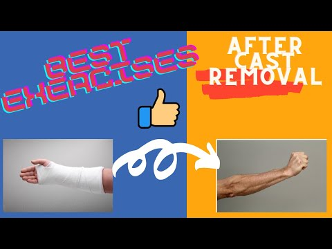 Broken Wrist Exercises after taking off Cast (Fingers-Physical Therapy